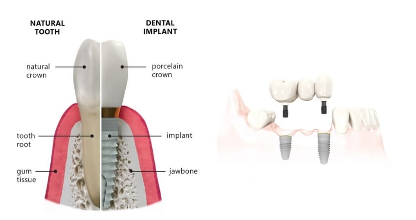 Informative diagram about single and multiple teeth replacements