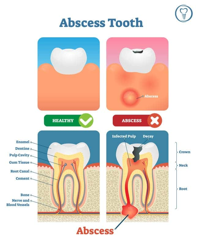The Diagram of Tooth Abscess