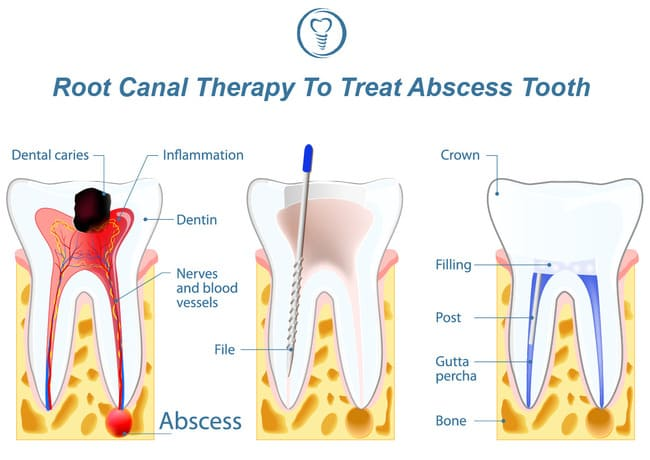 A diagram representing the root canal procedure