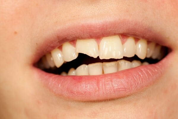The mouth of a person with a cracked front tooth